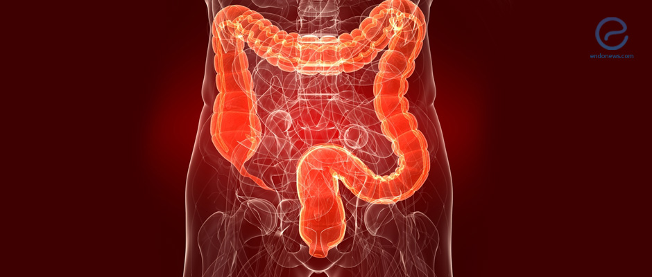 Laparoscopic Bowel Resection Can Be Beneficial Rectosigmoid Endometriosis