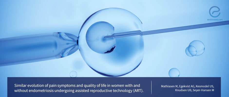 Assistive Reproduction a Suitable Option for the Treatment of Endometriosis-Associated Infertility