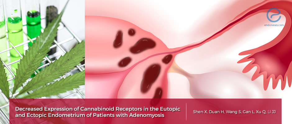 New findings in adenomyosis (endometriosis interna) patients with potential theraupetic research implications
