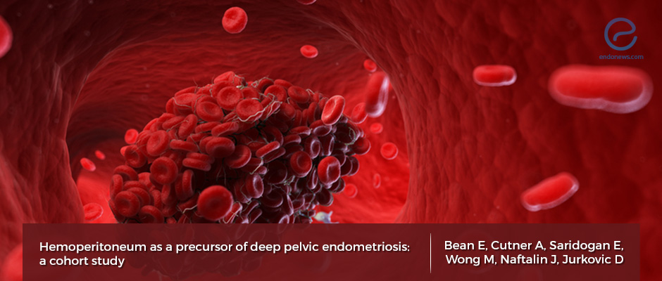 The association of significant hemoperitoneum (blood in the abdominal cavity) and deep pelvic endometriosis