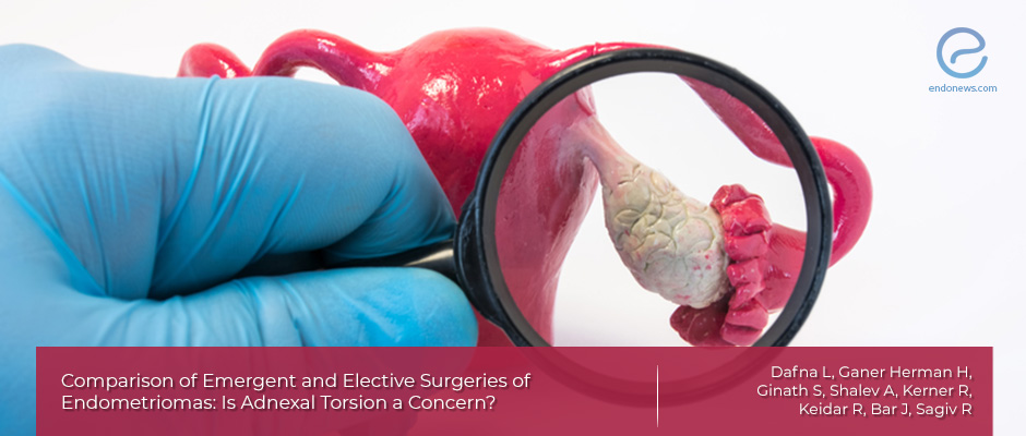 A  study about adnexial torsion doubts in patients with endometriosis.