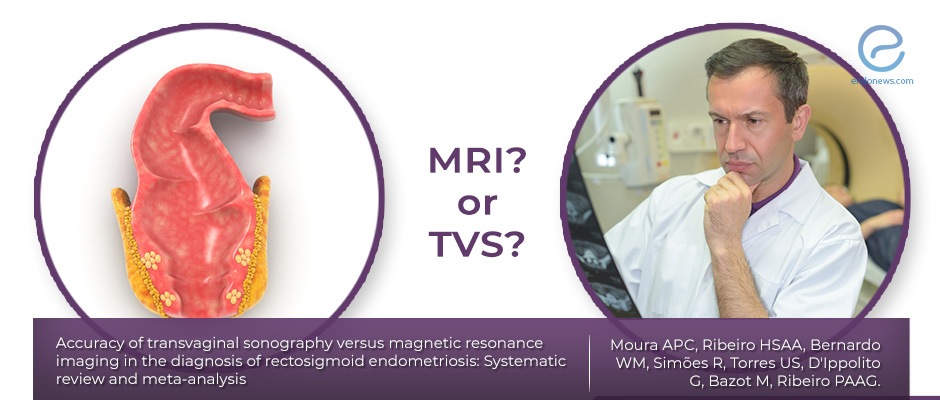 MRI or TVS for accurate diagnosis of rectosigmoid endometriosis?