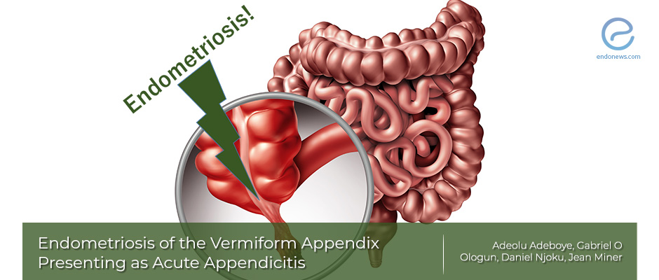 Endometriosis of the Appendix