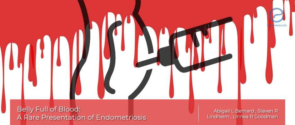 Hemorrhagic Ascites, Belly-Blood: The cause may be endometriosis!