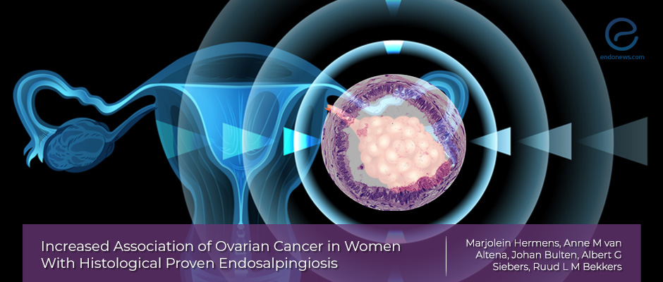 The link between ovarian cancer and endosalpingiosis