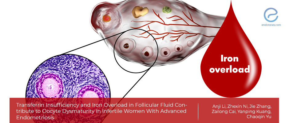 Iron overload in follicular fluid in Endometriosis