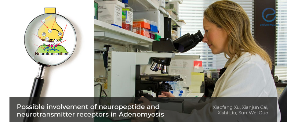 Current research on adenomyosis tissues with immunohistochemistry reveal novel findings