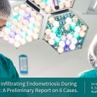 Fluorescence Guided Surgery: a New Technique to Treat Deep Infiltrating Endometriosis
