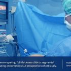 Reduced pain and increased fertiliy rates after surgery for colorectal endometriosis