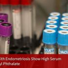 Cosmetics and some household products could be responsible for worsening endometriosis.