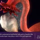 Is the mystery for  progression of endometriosis hiding out in abnormally located endometrial cells?