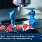 A miniaturized version of endometrium: organoids for endometriosis research