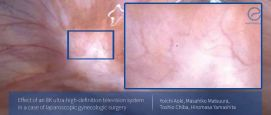 Picture This: 8K UHD Television System for Endometriosis Surgery