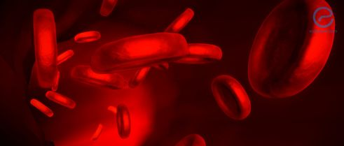 Agents Causing Red Blood Cell Lysis Worsens Endometriosis