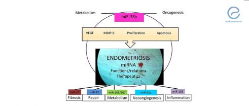 The Potential Molecular Mechanisms that Drive Endometriosis Progression