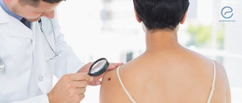 Does endometriosis increase skin cancer risk?