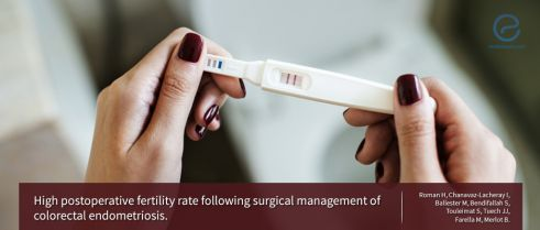 IVF Is the Best Option to Become Pregnant for Women with Severe Endometriosis, or Is It Not?