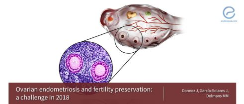 "How to preserve fertility in women with ""ovarian endometriosis""?"