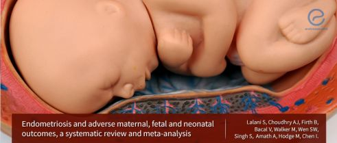 Maternal and fetal outcomes in women with endometriosis : A review and meta-analysis