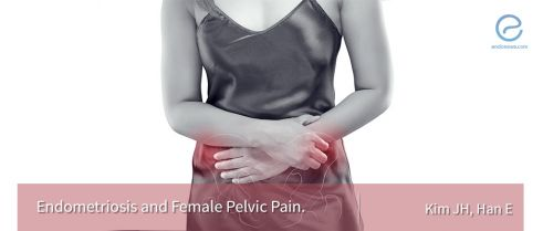 Endometriosis and female pelvic pain in all aspects