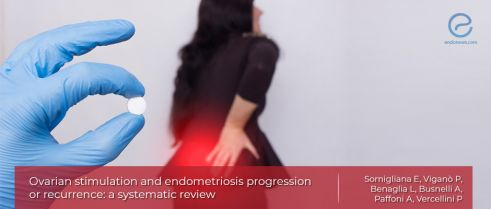 Ovarian stimulation regimes: Concerns on progression or recurrence of endometriosis