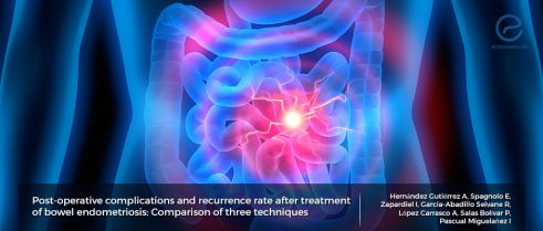 Which surgical approach for bowel endometriosis?