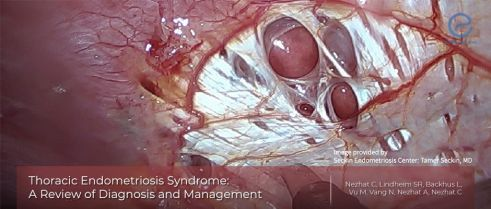 Thoracic endometriosis: the most frequent endometriosis involvement outside abdominopelvic cavity