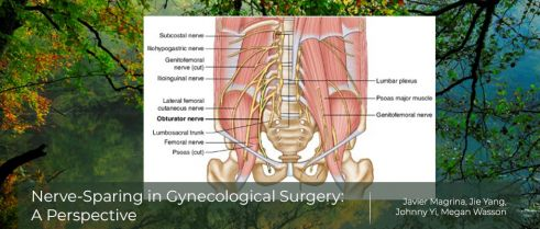 Benefits of Nerve-Sparing Hysterectomy